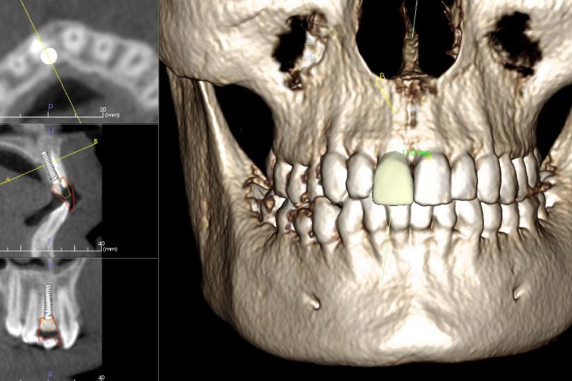 Beneficios de la radiografía dental 3D
