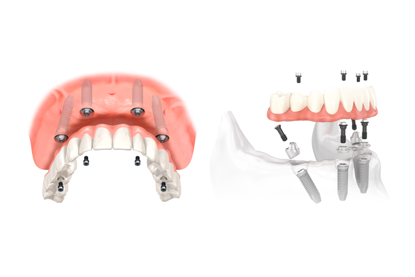Esta imagen del post del blog de odontología representa el post All on four: nueva técnica de rehabilitación oral
