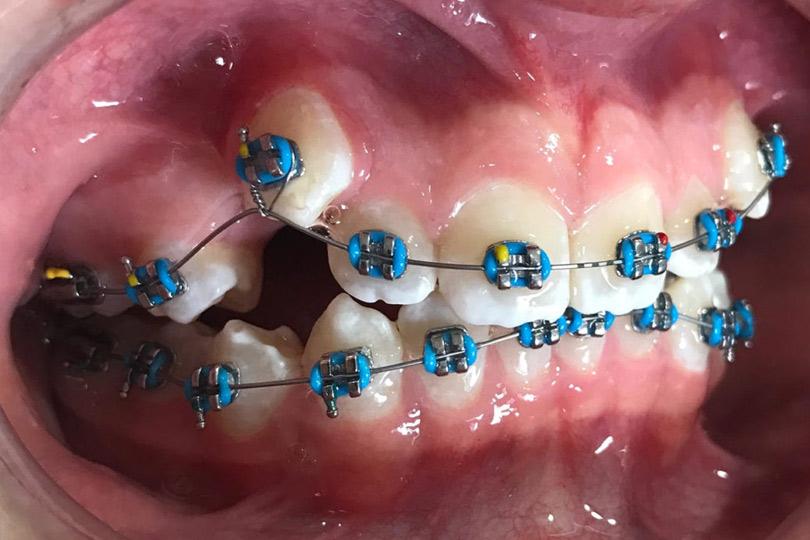 Ejemplo de Nuevas técnicas de ortodoncia avanzada