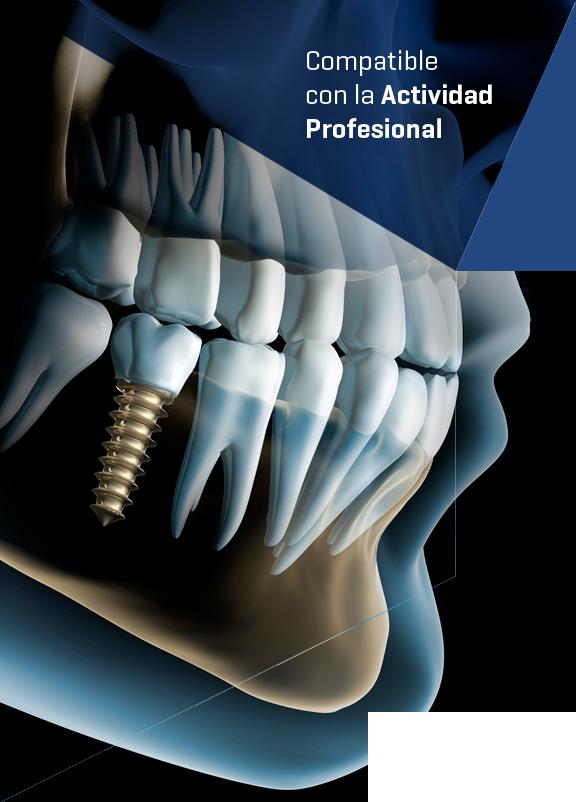 Curso Complicaciones en Implantología: Periimplantitis realizado por nuestros expertos de Knotgroup Dental Institute