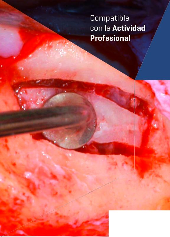 Curso Elevación de Seno realizado por nuestros expertos de Knotgroup Dental Institute