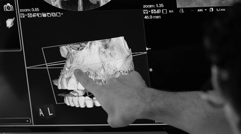 El curso de odontología Nuevas Tecnologías en el Diagnóstico Implantológico forma parte de nuestro catálogo de cursos de Knotgroup Dental Institute
