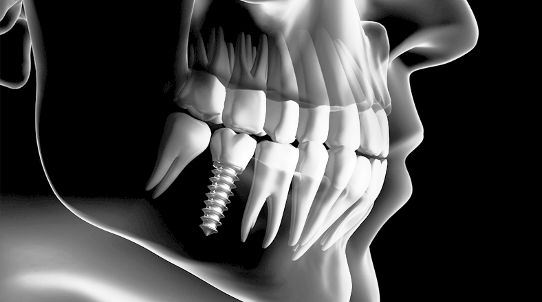 El curso de odontología Complicaciones en Implantología: Periimplantitis forma parte de nuestro catálogo de cursos de Knotgroup Dental Institute