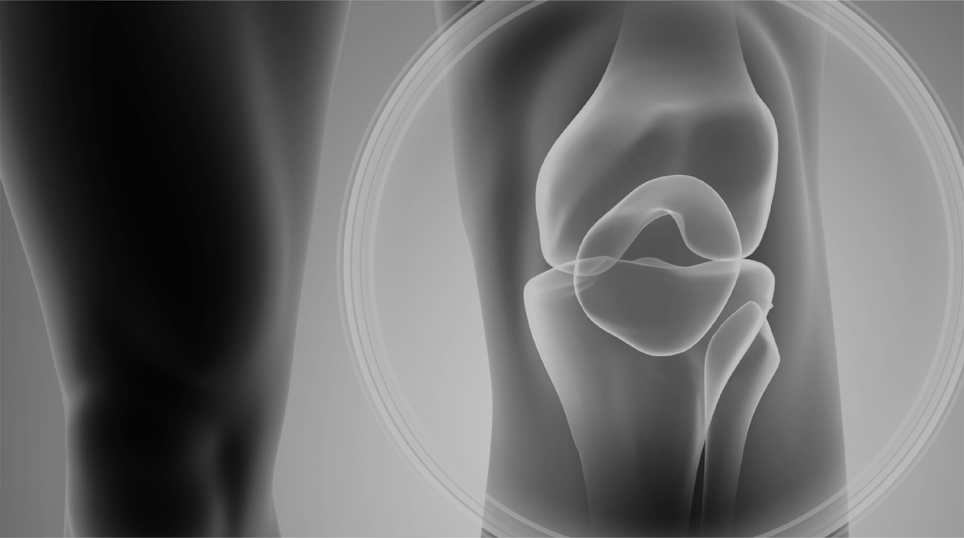 El curso de salud Anatomía Quirúrgica y Exploración de la Rodilla forma parte de nuestro catálogo de cursos de Alebat Education