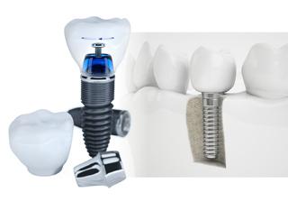 Curso Cirugía Guiada en Implantología realizado por nuestros expertos de Knotgroup Dental Institute