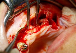 Curso intensivo cirugia avanzada realizado por los profesores de Alebat Education