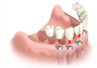 Curso Especialización en Prótesis sobre Implantes realizado por nuestros expertos de Knotgroup Dental Institute