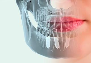 Curso Complicaciones en Implantología realizado por nuestros expertos de Knotgroup Dental Institute