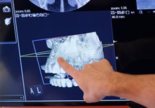 Curso Nuevas Tecnologías en el Diagnóstico Implantológico realizado por nuestros expertos de Knotgroup Dental Institute