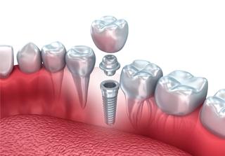 Curso Tejidos Periodontales realizado por nuestros expertos de Knotgroup Dental Institute