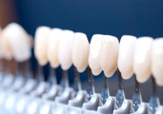 Curso carillas porcelana realizado pos los expertos de Knotgroup Dental Institute