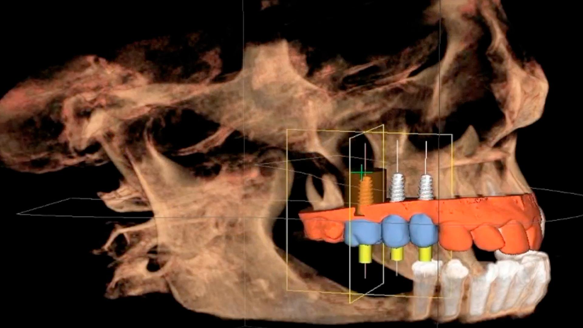 <p>En esta Masterclass <strong>Odontolog&iacute;a digital: la clave para la diferenciaci&oacute;n</strong>, impartida por el doctor Carlos Barrado, analizaremos un tema que cada vez consideramos m&aacute;s importante: la <strong>odontolog&iacute;a digital</strong> como herramienta para la diferenciaci&oacute;n.<br /> <br /> La digitalizaci&oacute;n de la cl&iacute;nica dental nos permite trabajar de forma &oacute;ptima en la atenci&oacute;n y el tratamiento de nuestros pacientes, ahondando en la excelencia. La <strong>odontolog&iacute;a digital</strong> nos permite trabajar con un flujo de trabajo m&aacute;s r&aacute;pido y preciso. Gracias a esta Masterclass, <strong>Odontolog&iacute;a digital: la clave para la diferenciaci&oacute;n</strong>, podr&aacute;s conocer y profundizar en las &uacute;ltimas tecnolog&iacute;as en <strong>odontolog&iacute;a digital</strong>. Conocer a fondo estas tecnolog&iacute;as te facilitar&aacute; tu trabajo como odont&oacute;logo obteniendo mejores resultados en todos los tratamientos de tu cl&iacute;nica dental.<br /> <br /> Todas nuestras Masterclass est&aacute;n impartidas por los mayores expertos en odontolog&iacute;a. Gracias a nuestra Masterclass&nbsp;<strong>Odontolog&iacute;a digital: la clave para la diferenciaci&oacute;n</strong>&nbsp;y otras como esta, que forman parte de la serie&nbsp;<strong>Nuevas tecnolog&iacute;as en implantolog&iacute;a</strong>, podr&aacute;s desarrollar y actualizar tus conocimientos sobre las tecnolog&iacute;as m&aacute;s avanzadas en diagn&oacute;stico y cirug&iacute;a odontol&oacute;gica, alcanzando diferentes campos de la <strong>odontolog&iacute;a digital</strong>, alcanzando una formaci&oacute;n avanzada y permiti&eacute;ndote profundizar en&nbsp;los aspectos a tener en cuenta en la colocaci&oacute;n de implantes dentales con criterios cient&iacute;ficos y de excelencia, abordando las &uacute;ltimas tendencias y t&eacute;cnicas m&aacute;s actuales en el sector odontol&oacute;gico.<br /> <br /> 