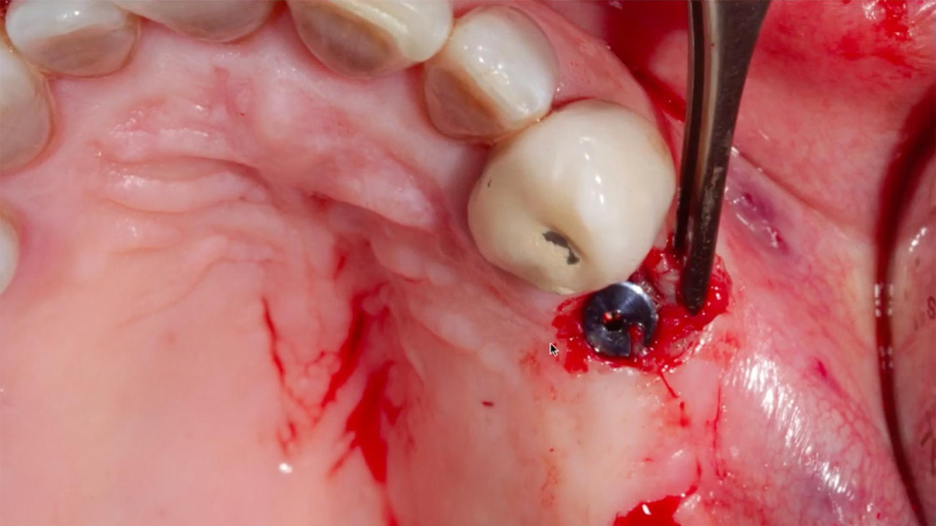 En esta Masterclass<b>Colocación de implantes con elevación de seno crestal (III)</b>,impartida por el doctor Óscar Alonso, pondremos sobre la mesa un caso de fracaso de un antiguo puente dentosoportado en las piezas 23x25x27 y encontraremos la solución mediante la <b>elevación de seno crestal</b> y la colocación de implantes. <br /><br /> La <b>elevación del seno crestal</b> y la colocación de injertos óseos es un procedimiento que permite la colocación de implantes dentales en casos en los que la altura ósea del maxilar es insuficiente. Gracias a esta Masterclass <b>Colocación de implantes con elevación de seno crestal (III)</b> podrás aprender a realizar una correcta <b>elevación del seno crestal</b> y así poder colocar conveniente el implante según las características particulares de cada paciente que acude a la clínica dental. En definitiva, saber llevar a cabo cada paso a seguir en la <b>elevación del seno crestal</b> en tratamientos implantológicos te facilitará tu trabajo como odontólogo obteniendo mejores resultados en la colocación de implantes dentales. <br /><br /> Todas nuestras Masterclass están impartidas por los mayores expertos en odontología. Gracias a nuestra Masterclass<b>Colocación de implantes con elevación de seno crestal(III)</b>y otras como esta, que forman parte de la serie<b>Cirugía del seno maxilar y elevación de piso nasal</b> podrás desarrollar y actualizar tus conocimientos sobrelas técnicas quirúrgicas de <b>elevación sinusal</b>,alcanzando una formación avanzada y permitiéndote profundizar enlos aspectos a tener en cuenta en la <b>cirugía del seno maxilar</b> con criterios científicos y de excelencia, abordando las últimas tendencias y técnicas más actuales en el sector odontológico. <br /><br /> Desde Knotgroup Dental Institute te invitamos a que explores a través de nuestra web y encuentres otras masterclass como <b>Colocación de implantes con elevación de seno crestal (III)</b> para actualizar tus conocimientos y aplicarlos a tu c