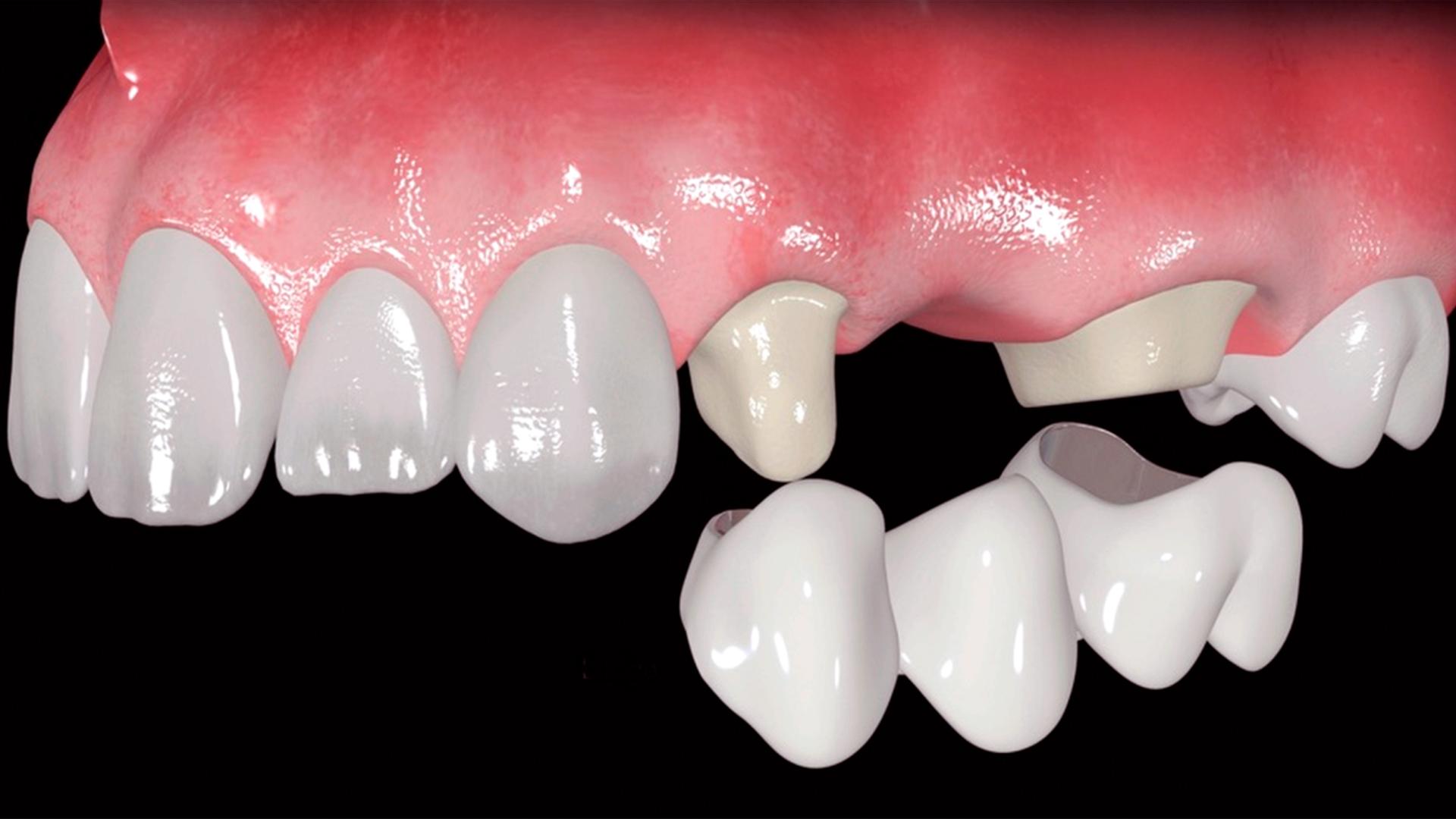 En esta Masterclass<b>Colocación de implantes con elevación de seno crestal (IV)</b>,impartida por el doctor Óscar Alonso, pondremos sobre la mesa un caso de fracaso de un antiguo puente dentosoportado en las piezas 25x27 y encontraremos la solución mediante la <b>elevación de seno crestal</b> y la colocación de dos implantes. <br /><br /> La <b>elevación del seno cestal</b> y la colocación de injertos óseos es un procedimiento que permite la colocación de implantes dentales en casos en los que la altura ósea del maxilar es insuficiente. Gracias a esta Masterclass <b>Colocación de implantes con elevación de seno crestal (IV)</b> podrás aprender a realizar una correcta <b>elevación del seno crestal</b> y así poder colocar conveniente el implante según las características particulares de cada paciente que acude a la clínica dental. En definitiva, saber llevar a cabo cada paso a seguir en la <b>elevación del seno crestal</b> en tratamientos implantológicos te facilitará tu trabajo como odontólogo obteniendo mejores resultados en la colocación de implantes dentales. <br /><br /> Todas nuestras Masterclass están impartidas por los mayores expertos en odontología. Gracias a nuestra Masterclass<b>Colocación de implantes con elevación de seno crestal(IV)</b>y otras como esta, que forman parte de la serie<b>Cirugía del seno maxilar y elevación de piso nasal</b> podrás desarrollar y actualizar tus conocimientos sobrelas técnicas quirúrgicas de <b>elevación sinusal</b>,alcanzando una formación avanzada y permitiéndote profundizar enlos aspectos a tener en cuenta en la <b>cirugía del seno maxilar</b> con criterios científicos y de excelencia, abordando las últimas tendencias y técnicas más actuales en el sector odontológico. <br /><br /> Desde Knotgroup Dental Institute te invitamos a que explores a través de nuestra web y encuentres otras masterclass como <b>Colocación de implantes con elevación de seno crestal (IV)</b> para actualizar tus conocimientos y aplicarlos a tu clíni