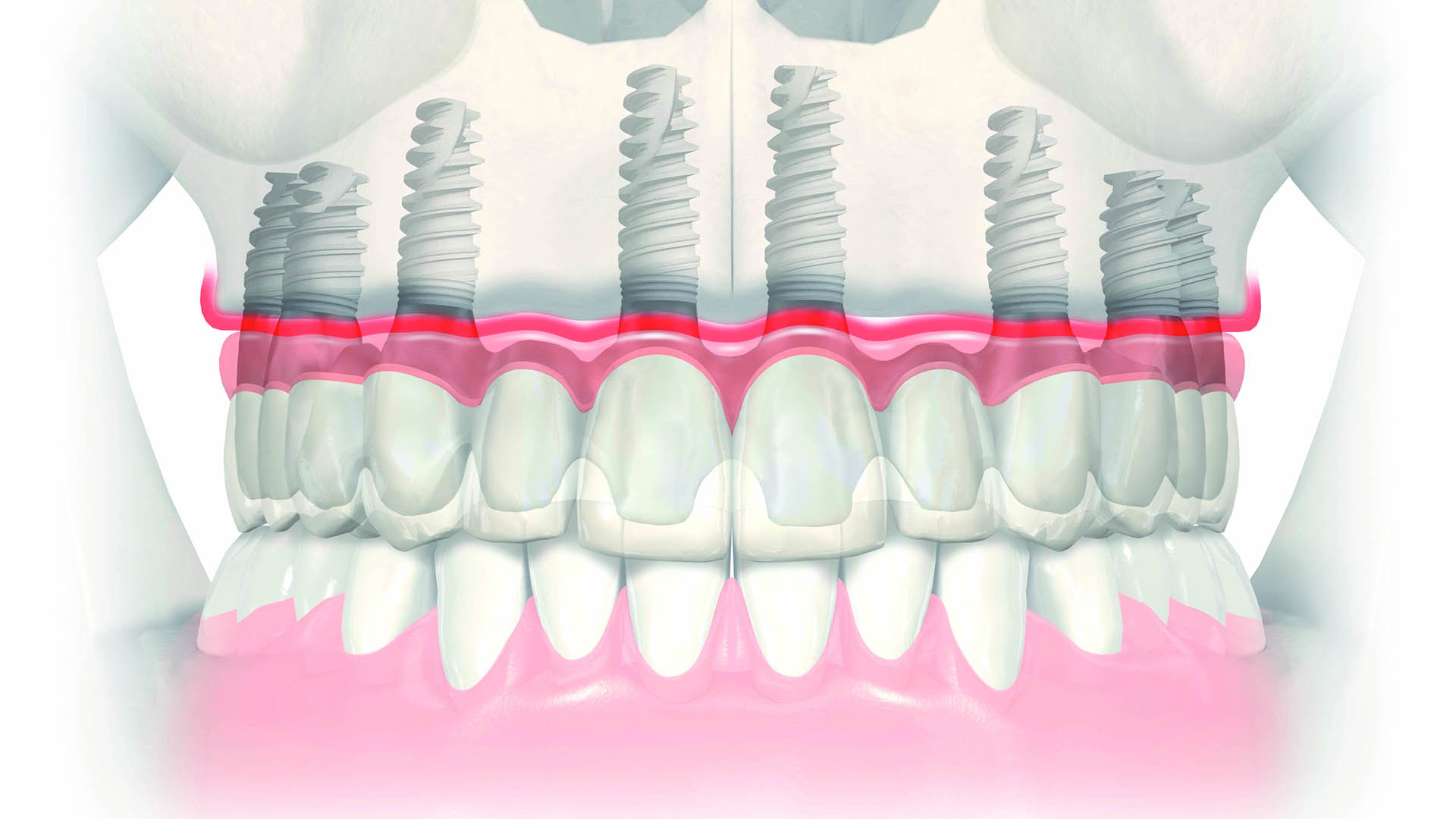 Masterclass odontología Implantes unitarios atornillados