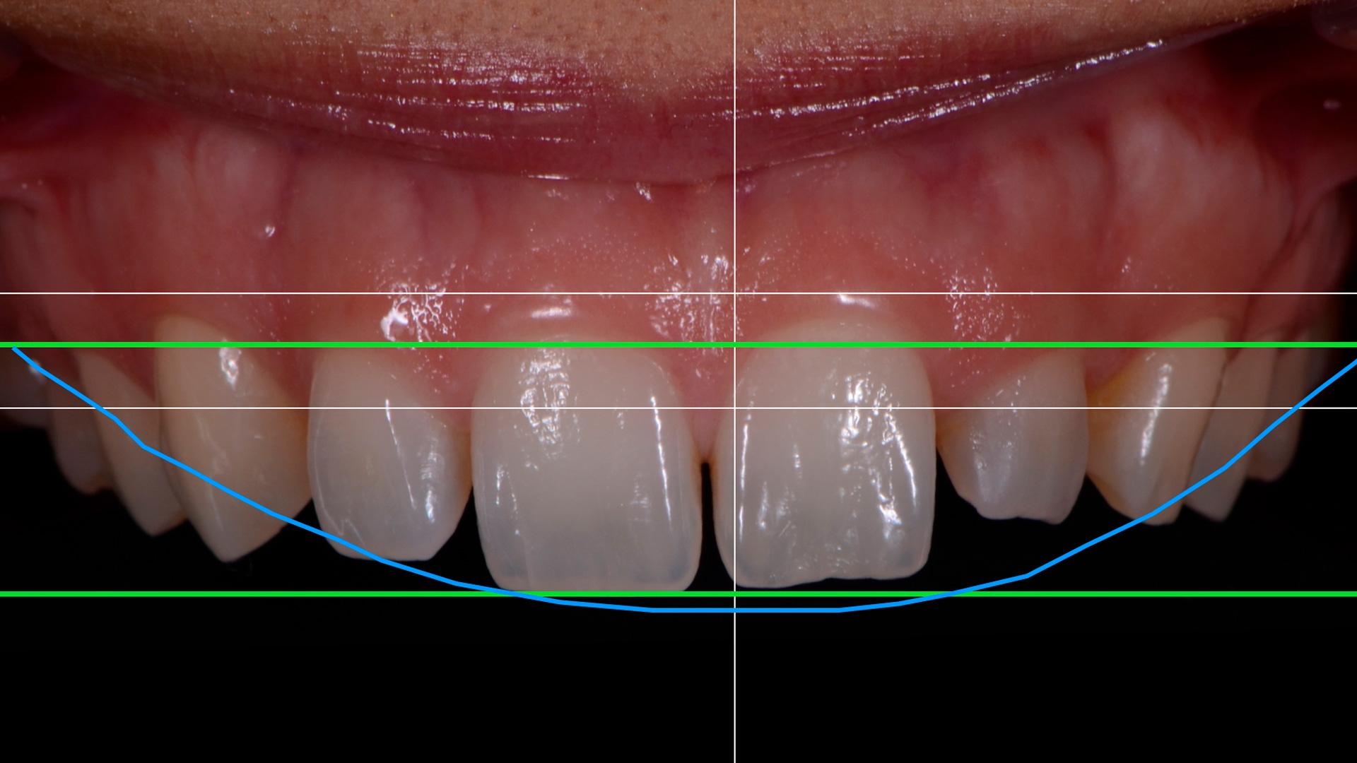 En esta Masterclass <b>Protocolo fotográfico DSD en odontología</b>, impartida por el doctor Alejandro Otero, detallaremos cómo se realiza el protocolo fotográfico que se emplea en el <b>DSD</b> aplicado a la <b>odontología</b>. <br /><br />  Para diseñar la sonrisa del paciente con la tecnología <b>DSD</b> se necesitan diferentes fotografías extraorales e intraorales. Gracias a esta Masterclass, <b>Protocolo fotográfico DSD en odontología</b>, conocerás con precisión cuántas fotografías se necesitan para realizar un buen diseño con <b>DSD</b> en <b>odontología</b>, siguiendo el protocolo fotográfico paso a paso. En definitiva, conocer el protocolo fotográfico te ayudará a planificar el tratamiento de tus pacientes en <b>odontología</b> con la tecnología <b>DSD</b>, facilitando tu trabajo como odontólogo y obteniendo los mejores resultados en la clínica dental. <br /><br /> Todas nuestras Masterclass están impartidas por los mayores expertos en odontología. Gracias a nuestra Masterclass<b>Diseño de sonrisa con DSD</b>y otras como esta, que forman parte de la serie<b>Nuevas tecnologías en implantología</b>, podrás desarrollar y actualizar tus conocimientos sobre las tecnologías más avanzadas en diagnóstico y cirugía odontológica, profundizando en diferentes campos de la odontología digital, como la tecnología Digital Smile Design para el <b>diseño de sonrisa</b>, alcanzando una formación avanzada y permitiéndote profundizar enlos aspectos a tener en cuenta en la colocación de implantes dentales con criterios científicos y de excelencia, abordando las últimas tendencias y técnicas más actuales en el sector odontológico. <br /><br /> Desde Knotgroup Dental Institute te invitamos a que explores a través de nuestra web y encuentres otras masterclass como <b>Diseño de sonrisa con DSD</b> para actualizar tus conocimientos y aplicarlos a tu clínica dental, así como la amplia gama de cursos que ofrecemos también sobre <b>Diseño de sonrisa con DSD</b>, impartidos por los mejo
