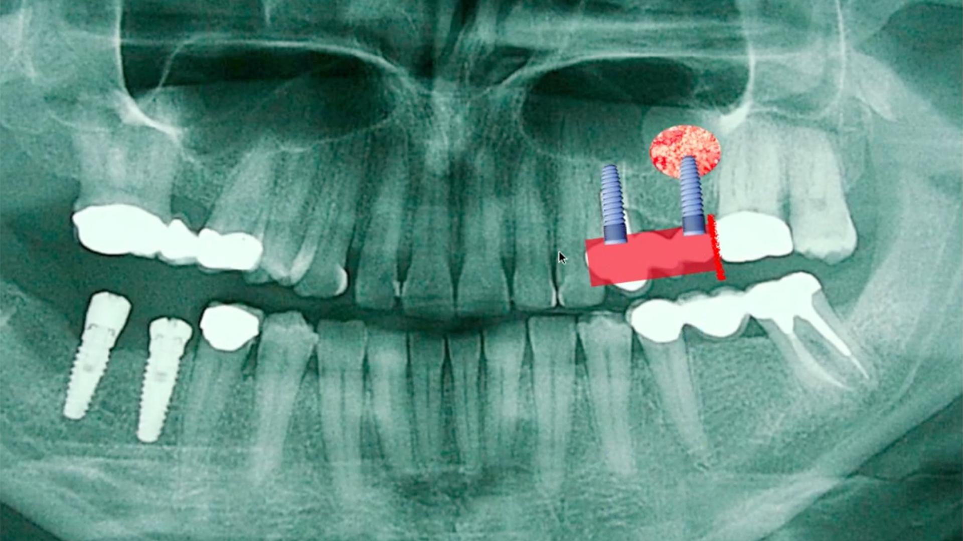 Masterclass Colocación de implantes con elevación de seno crestal (I) realizado por nuestros expertos de Knotgroup Dental Institute.