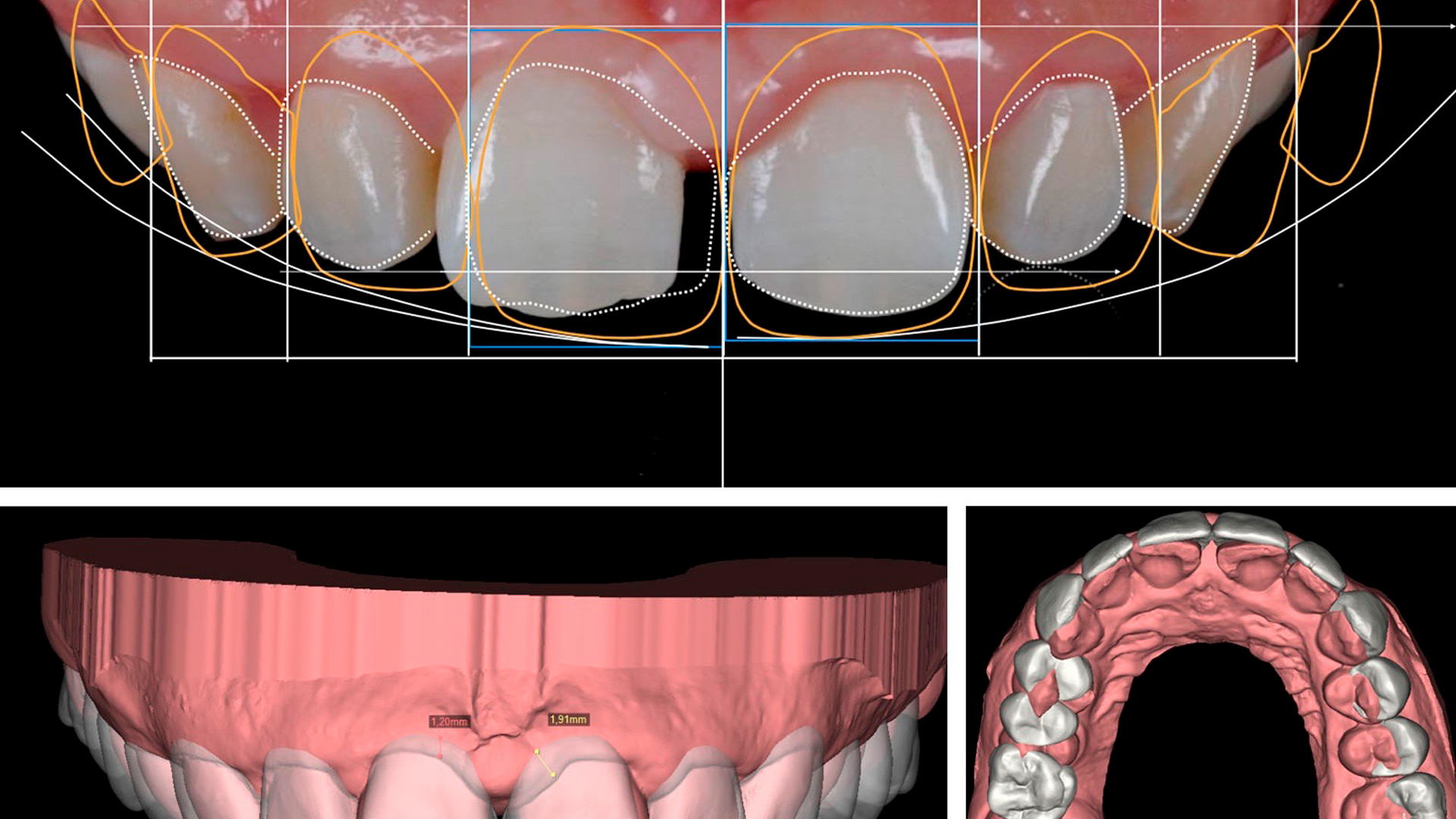 En esta Masterclass <b>Diseño de sonrisa con DSD</b>, impartida por el doctor Alejandro Otero, revisaremos cómo se realiza el <b>diseño de sonrisa</b> con DSD aplicado a la odontología y la implantología, a través de un caso práctico. <br /><br />  Hay un desafío en la odontología estética: conseguir el <b>diseño de sonrisa</b> perfecto para el paciente. El Digital Smile Design es una herramienta que sirve para la planificación de ese <b>diseño de sonrisa</b> ideal que va a tener el paciente. Gracias a esta Masterclasss, <b>Diseño de sonrisa con DSD</b>, podrás conocer esta tecnología, que te ayudará a planear o planificar el tratamiento de <b>diseño de sonrisa</b> de tus pacientes en la clínica dental, facilitando tu trabajo como odontólogo y obteniendo los mejores resultados. <br /><br /> Todas nuestras Masterclass están impartidas por los mayores expertos en odontología. Gracias a nuestra Masterclass<b>Diseño de sonrisa con DSD</b>y otras como esta, que forman parte de la serie<b>Nuevas tecnologías en implantología</b>, podrás desarrollar y actualizar tus conocimientos sobre las tecnologías más avanzadas en diagnóstico y cirugía odontológica, profundizando en diferentes campos de la odontología digital, como la tecnología Digital Smile Design para el <b>diseño de sonrisa</b>, alcanzando una formación avanzada y permitiéndote profundizar enlos aspectos a tener en cuenta en la colocación de implantes dentales con criterios científicos y de excelencia, abordando las últimas tendencias y técnicas más actuales en el sector odontológico. <br /><br /> Desde Knotgroup Dental Institute te invitamos a que explores a través de nuestra web y encuentres otras masterclass como <b>Diseño de sonrisa con DSD</b> para actualizar tus conocimientos y aplicarlos a tu clínica dental, así como la amplia gama de cursos que ofrecemos también sobre <b>Diseño de sonrisa con DSD</b>, impartidos por los mejores profesionales en odontología. <br /><br />  Muchas gracias por tu tiempo. Esperam