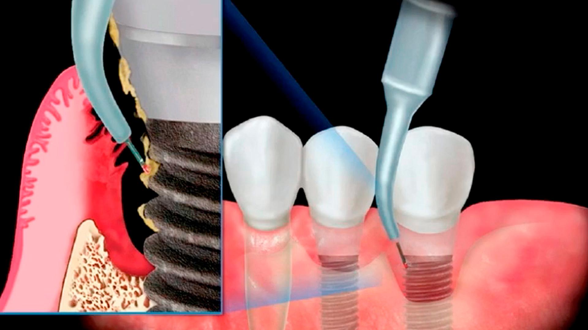 La masterclass de odontología Mantenimiento clínico de los implantes dentales: el papel del higienista dental forma parte de nuestro catálogo de masterclass de Knotgroup Dental Institute