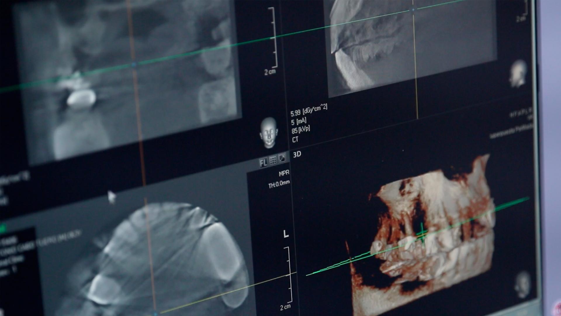 En esta Masterclass<b>Estudio CBCT diagnóstico</b>,impartida por el doctor Pedro Guitián,aprenderás las claves para realizar un buen diagnóstico a través de herramientas como la tomografía computarizada de haz cónico, conocida por sus siglas en inglés <b>CBCT</b> (Cone Beam Computed Tomography). <br /><br /> Realizar un buen diagnóstico es vital y necesario a la hora de elegir un tratamiento adecuado para cada paciente en la clínica dental. Gracias a esta Masterclass <b>Estudio CBCT diagnóstico</b> podrás dominar la utilización del escáner <b>CBCT</b>, un escáner que ha revolucionado la toma de imágenes en el mundo de la medicina y, especialmente, la odontología. Con el <b>CBCT</b> podrás obtener una imagen 3D con proyecciones de todos los ángulos, consiguiendo una imagen holística de los dientes y la mandíbula completa. En definitiva, conocer los posibles usos del <b>CBCT</b> te ayudará a realizar un diagnóstico completo de tus pacientes en la clínica dental, obteniendo mejores resultados y minimizando las complicaciones. <br /><br /> Todas nuestras Masterclass están impartidas por los mayores expertos en odontología. Gracias a nuestra Masterclass<b>Estudio CBCT diagnóstico</b>y otras como esta, que forman parte de la serie<b>Diagnóstico en Implantología</b>,podrás desarrollar y actualizar tus conocimientos sobrelas últimas tecnologías para el diagnóstico implantológico, como el <b>CBCT</b>,alcanzando una formación avanzada y permitiéndote profundizar enlos aspectos a tener en cuenta a la hora de realizar un diagnóstico con criterios científicos y de excelencia, abordando las últimas tendencias y técnicas más actuales en el sector odontológico. <br /><br /> Desde Knotgroup Dental Institute te invitamos a que explores a través de nuestra web y encuentres otras masterclass como <b>Estudio CBCT diagnóstico</b> para actualizar tus conocimientos y aplicarlos a tu clínica dental, así como la amplia gama de cursos que ofrecemos también sobre el <b>CBCT</b>, impartidos por