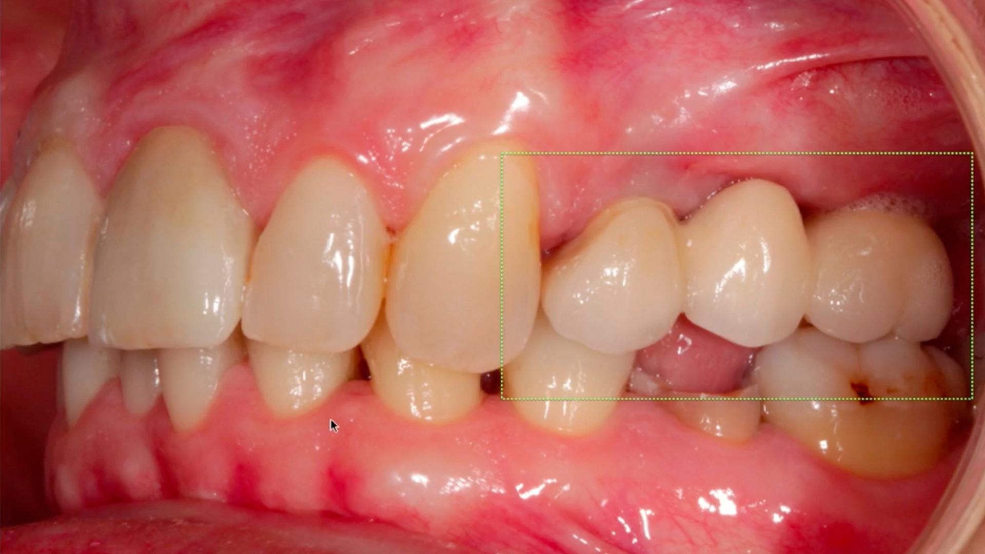 En esta Masterclass<b>Colocación de implantes con elevación de seno crestal (II)</b>,impartida por el doctor Óscar Alonso, veremos un caso de fracaso de puente dentosoportado en las piezas 24x27 y comprobaremos cómo puede solucionarse con la colocación de implantes y la <b>elevación de seno crestal</b>. <br /><br /> La <b>elevación del seno crestal</b> y la colocación de injertos óseos es un procedimiento que permite la colocación de implantes dentales en casos en los que la altura ósea del maxilar es insuficiente. Gracias a esta Masterclass <b>Colocación de implantes con elevación de seno crestal (II)</b> podrás aprender a realizar una correcta <b>elevación del seno crestal</b> y así poder colocar conveniente el implante según las características particulares de cada paciente que acude a la clínica dental. En definitiva, saber llevar a cabo cada paso a seguir en la <b>elevación del seno crestal</b> en tratamientos implantológicos te facilitará tu trabajo como odontólogo obteniendo mejores resultados en la colocación de implantes dentales. <br /><br /> Todas nuestras Masterclass están impartidas por los mayores expertos en odontología. Gracias a nuestra Masterclass<b>Colocación de implantes con elevación de seno crestal(II)</b>y otras como esta, que forman parte de la serie<b>Cirugía del seno maxilar y elevación de piso nasal</b> podrás desarrollar y actualizar tus conocimientos sobrelas técnicas quirúrgicas de <b>elevación sinusal</b>,alcanzando una formación avanzada y permitiéndote profundizar enlos aspectos a tener en cuenta en la <b>cirugía del seno maxilar</b> con criterios científicos y de excelencia, abordando las últimas tendencias y técnicas más actuales en el sector odontológico. <br /><br /> Desde Knotgroup Dental Institute te invitamos a que explores a través de nuestra web y encuentres otras masterclass como <b>Colocación de implantes con elevación de seno crestal (II)</b> para actualizar tus conocimientos y aplicarlos a tu clínica dental, así como la 