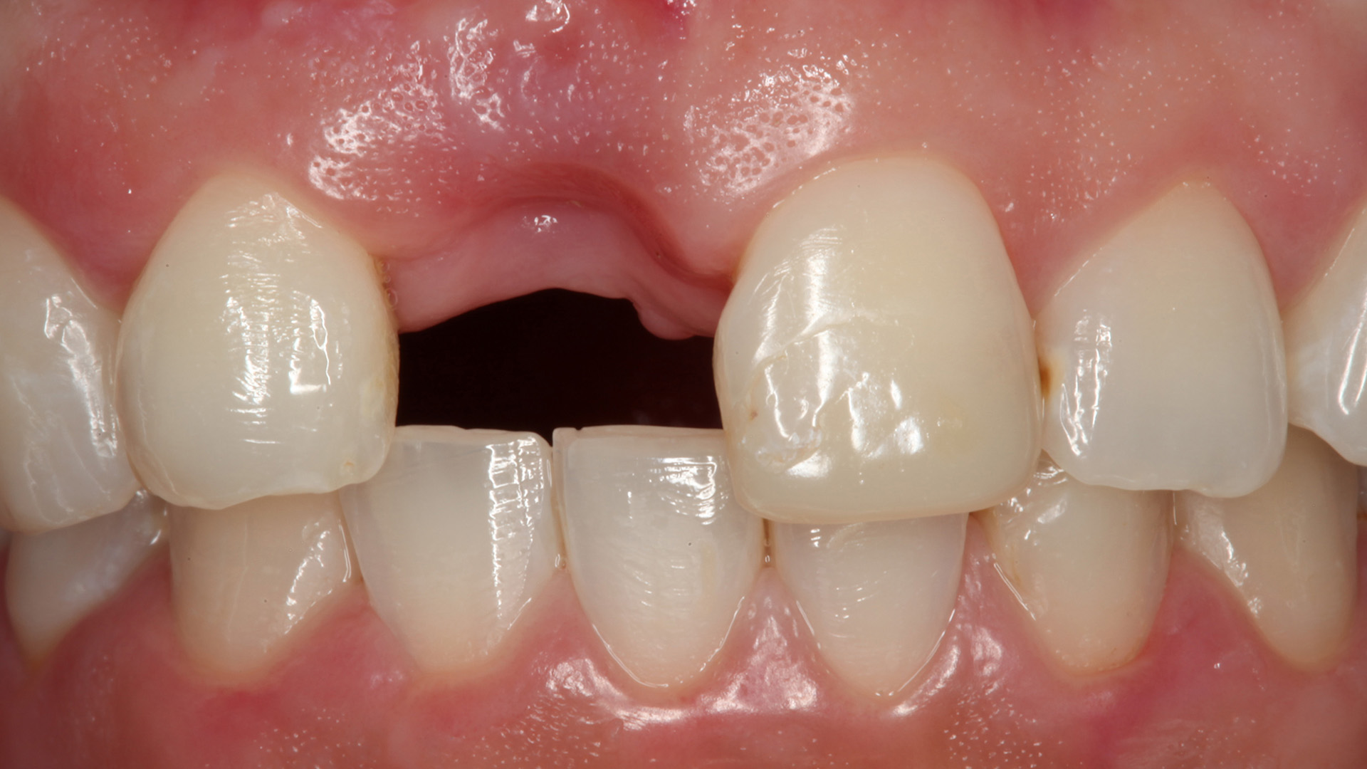 Masterclass odontología Estetica dental enfoque predecible