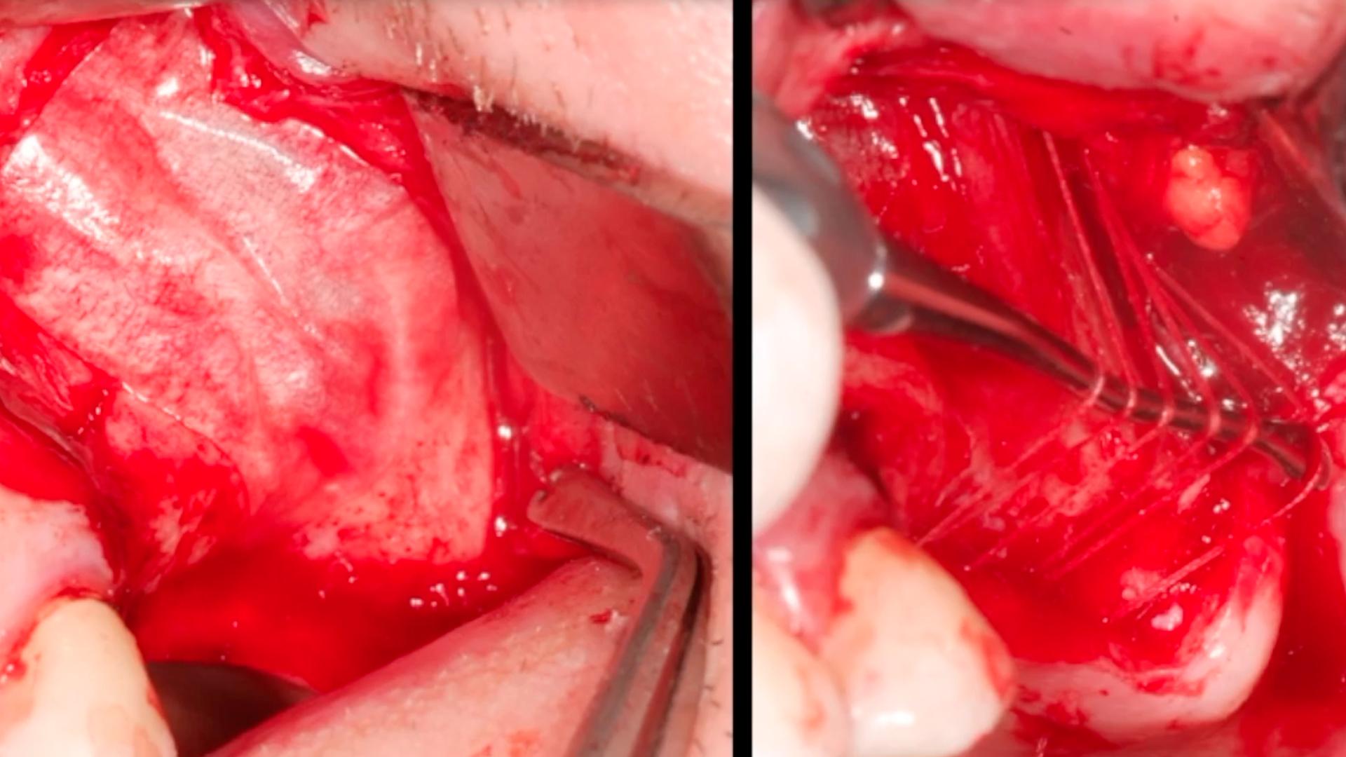 La masterclass de odontología Casos clínicos de elevación sinusal forma parte de nuestro catálogo de masterclass de Knotgroup Dental Institute