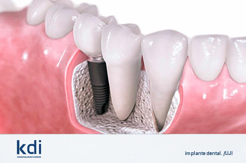 Fotografía que ilustra la noticia de odontología de Knotgroup Dental Institute sobre La nueva tecnología que mejora los recubrimientos de implantes dentales