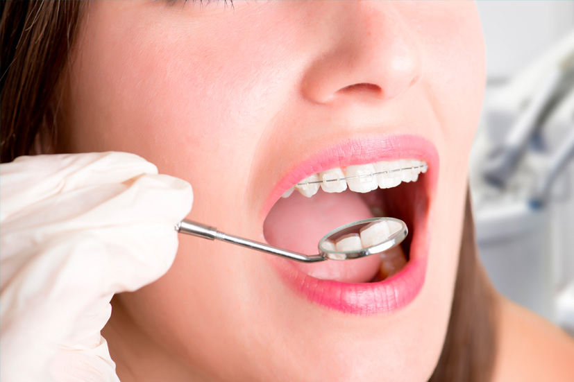 Esta imagen del post del blog de odontología representa el post ¿Cuándo iniciar la ortodoncia en menores?