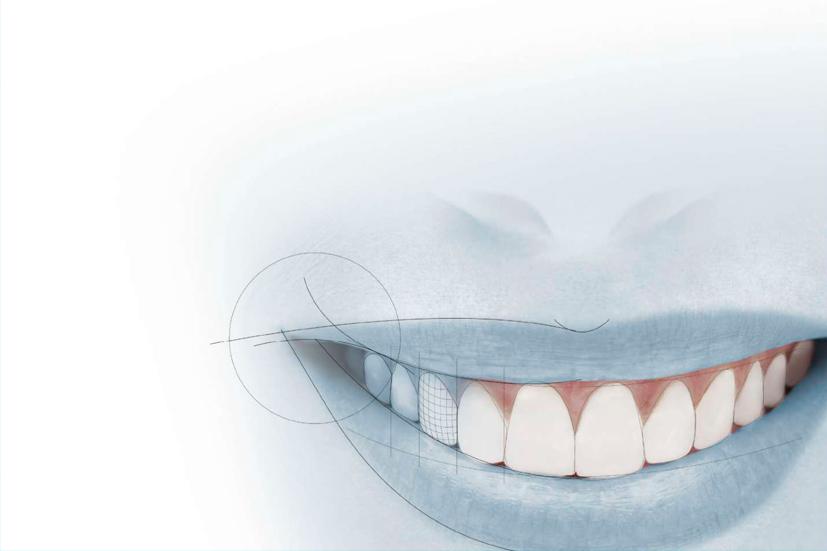 Esta imagen del post del blog de odontología representa el post Cómo conseguir la mínima invasión en odontología