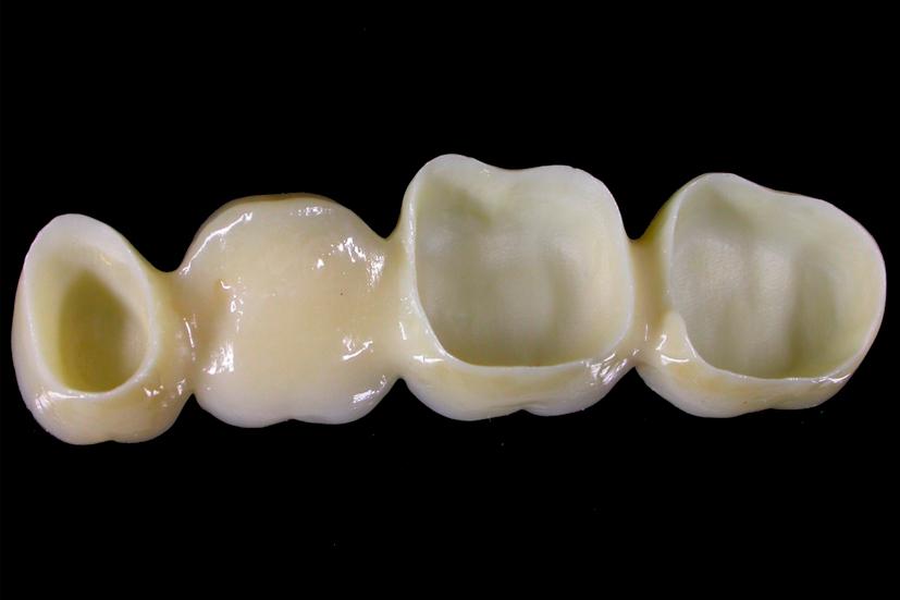 Esta imagen del post del blog de odontología representa el post Microfiltración en Odontología