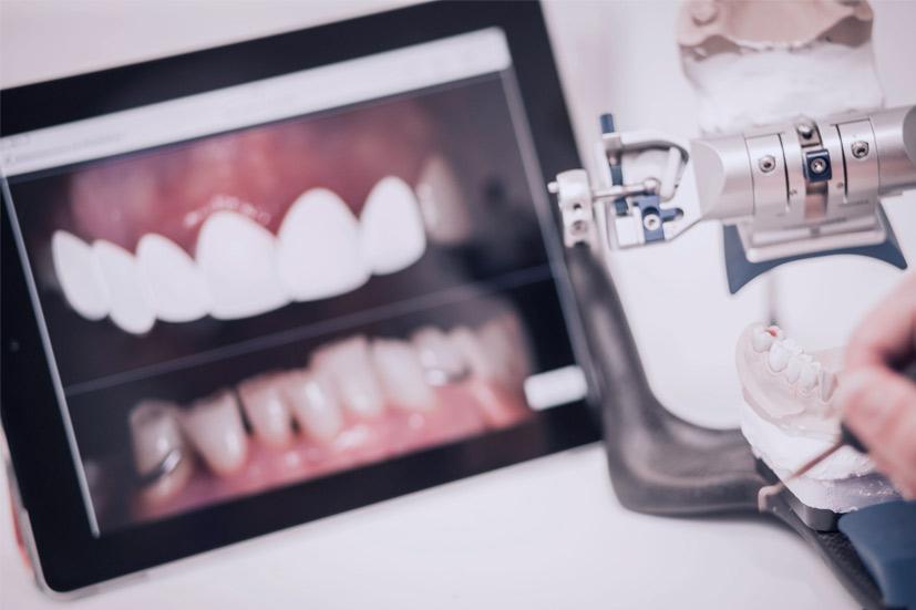 Esta imagen del post del blog de odontología representa el post Mínima Invasión en Odontología