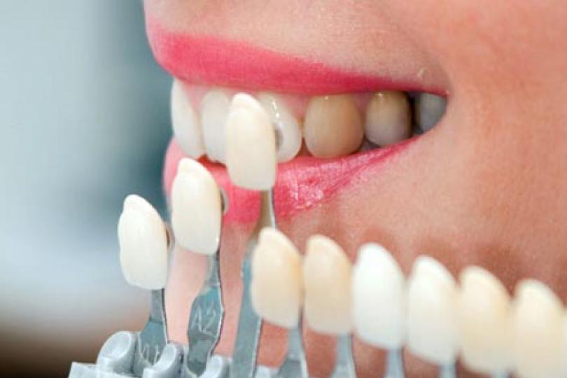 Esta imagen del post del blog de odontología representa el post Innovación en la estética dental