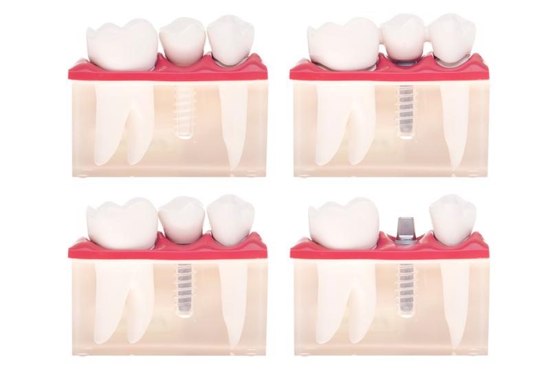 Esta imagen del post del blog de odontología representa el post Nuevos usos de las matrices del esmalte en odontología