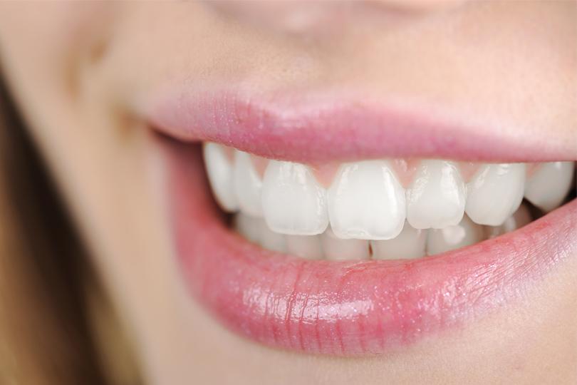 Esta imagen del post del blog de odontología representa el post ¿Cómo elegir el mejor composite dental?