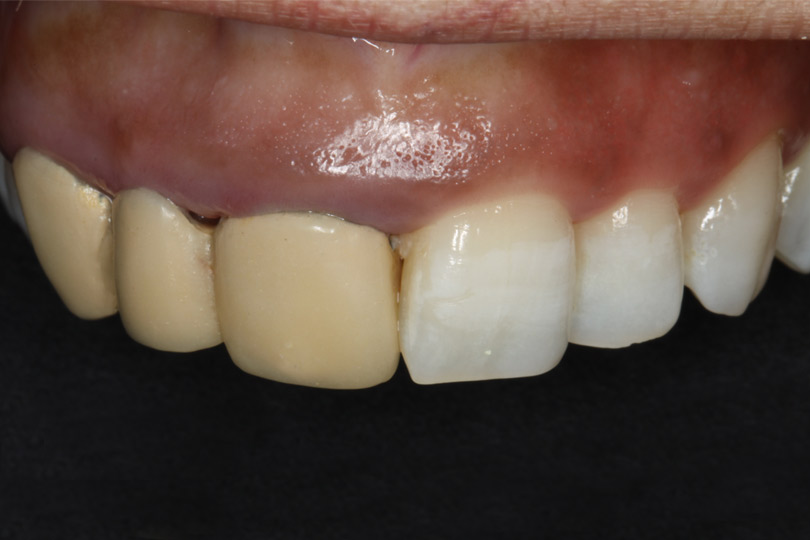 Esta imagen del post del blog de odontología representa el post Óxido de circonio, la alternativa más natural para restauraciones estéticas