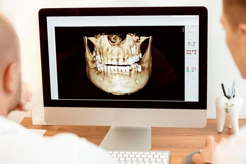 Esta imagen del post del blog de odontología representa el post Beneficios de la informática odontológica