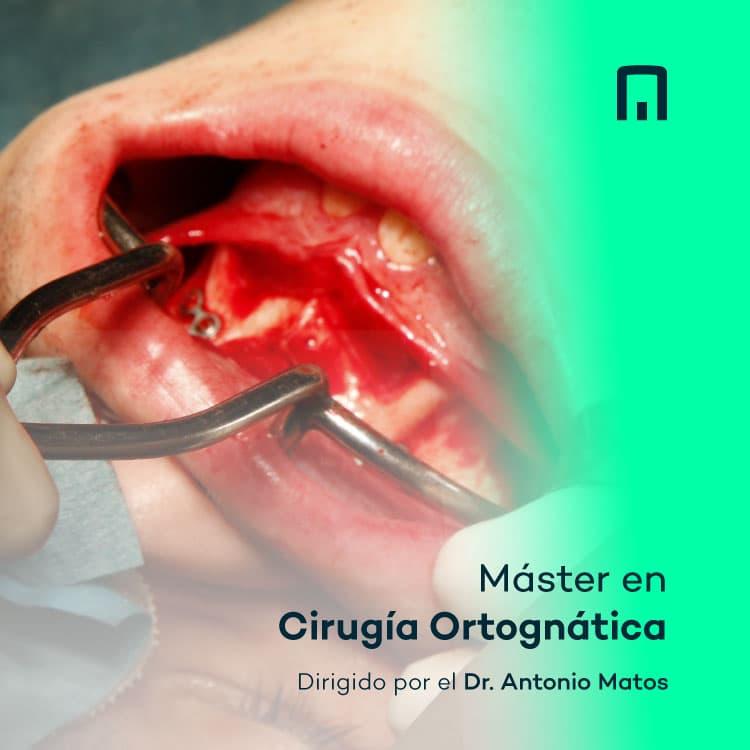 Imagen 4 móvil de la página de cursos de Inspiria, la plataforma de contenidos en odontología